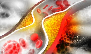 What You Need To Know About Cholesterol