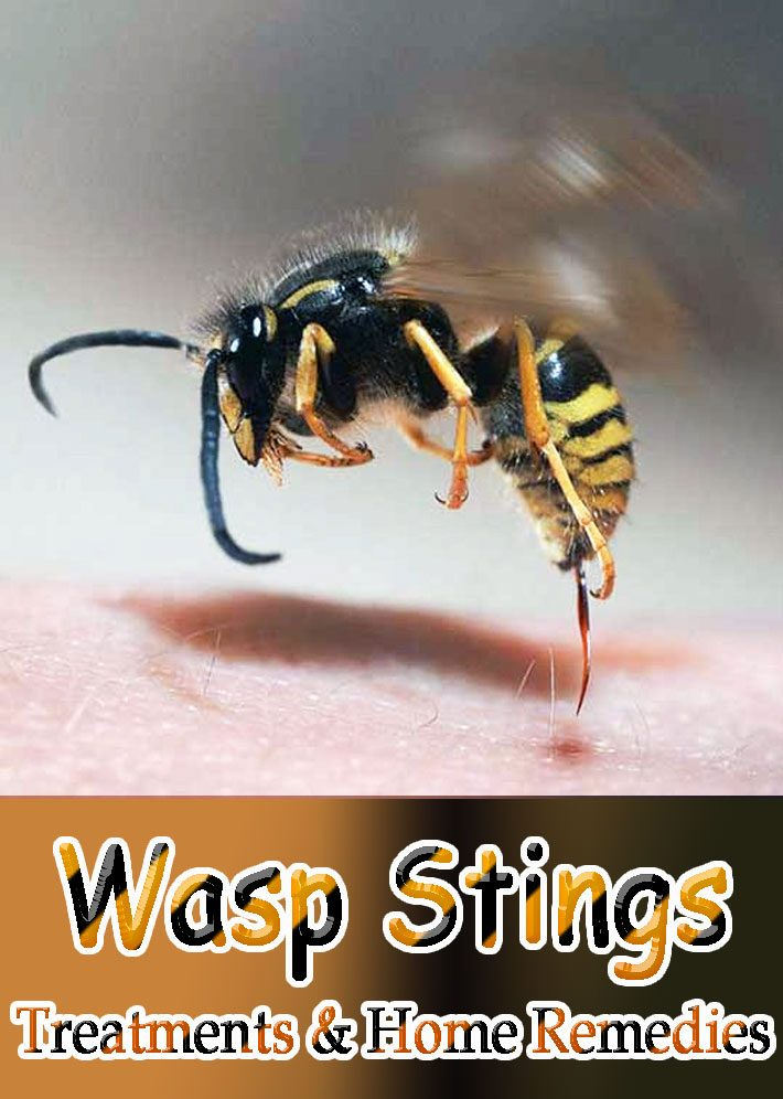 Wasp Stings: Treatments & Home Remedies
