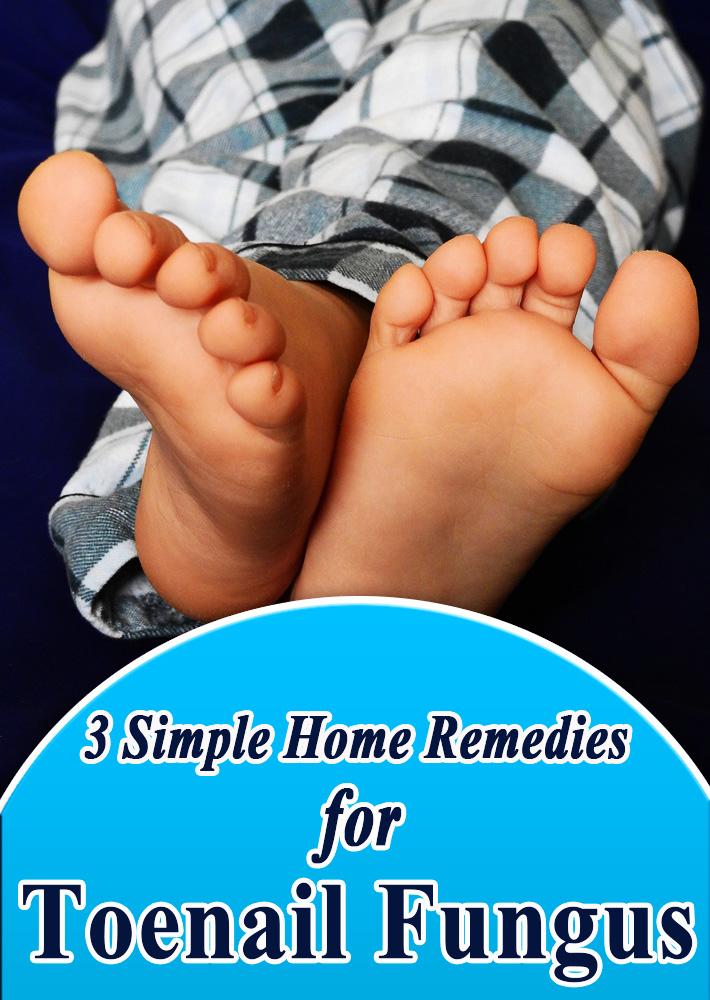 3 Simple Home Remedies for Toenail Fungus - Quiet Corner