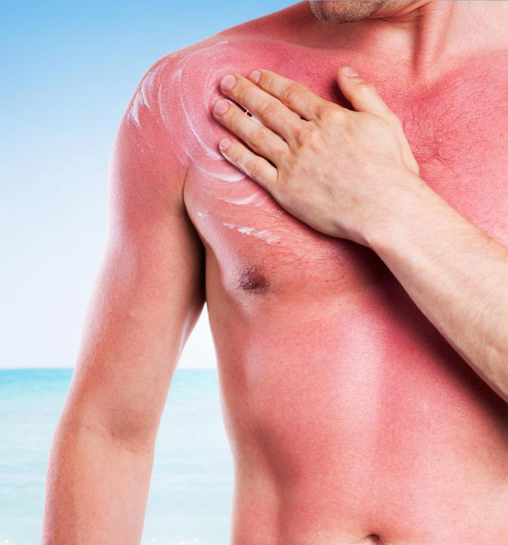10 Naturally Soothing Sunburn Treatments