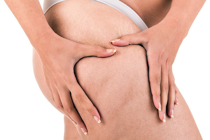 Thinking About Liposuction? Read This First!