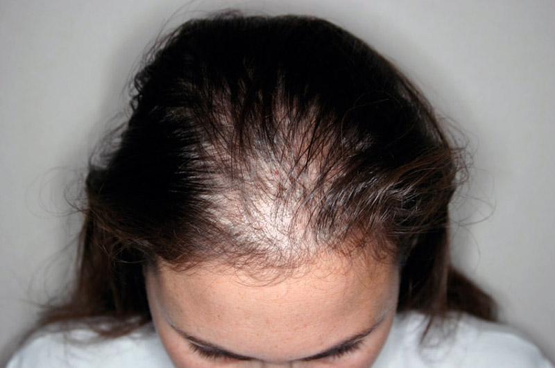 10 Reasons Why Women Too Suffer From Hair Loss