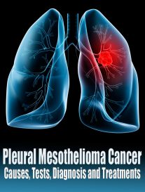 Pleural Mesothelioma Cancer - Causes, Tests, Diagnosis and Treatments