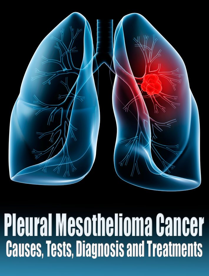 Pleural Mesothelioma Cancer – Causes, Tests, Diagnosis and Treatments